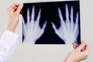 Диагностика остеопороза. Анализ на остеопороз. Симптомы. Какой врач лечит