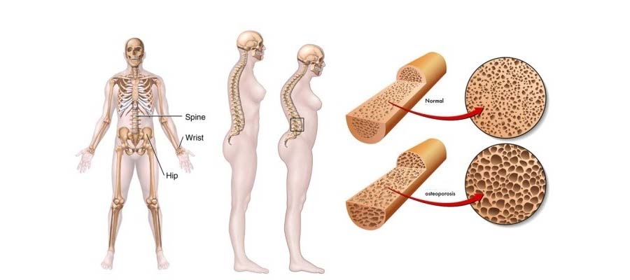 Остеопороз у женщин. Симптомы, диагностика, лечение, профилактика
