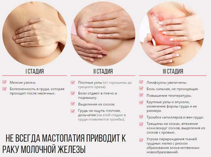 Бады НСП при мастопатии. Фиброзно кистозная мастопатия молочных желез у женщин Как лечить мастопатию БАД НСП. Где купить в Москве, СПб