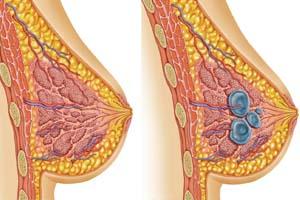Бады НСП при мастопатии, кисте в молочной железе у женщин. Как принимать. Где купить в Москве, СПб